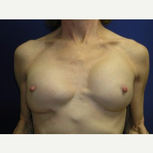 Breast Implant Revision before 3164453