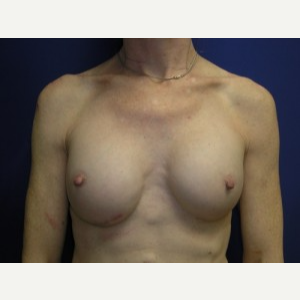 Breast Implant Revision after 3164453