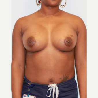 25-34 year old woman treated with Breast Implants after 3162962