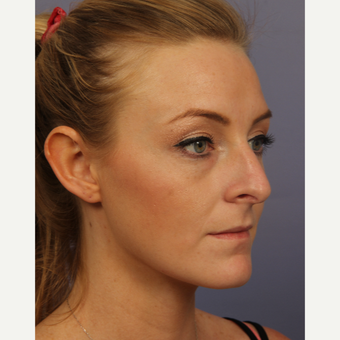 18-24 year old woman treated with Rhinoplasty before 3502714