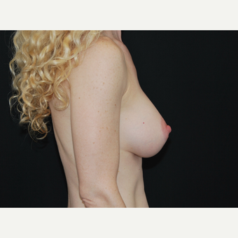 35-44 year old woman treated with Breast Implants after 3651340