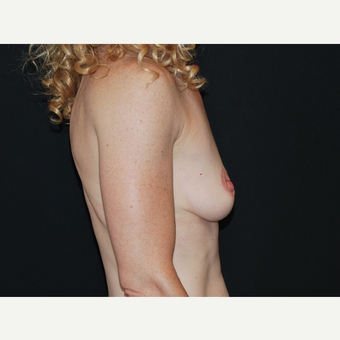 35-44 year old woman treated with Breast Implants before 3651340