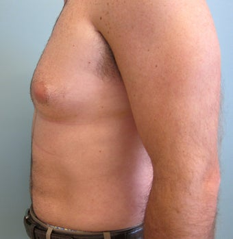 Liposuction of Abdomen, Love handles, Flanks, Chest 454529