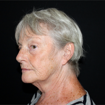 65-74 year old woman treated with Lower Face Lift before 3602967