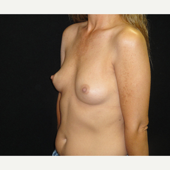 25-34 year old woman treated with Breast Augmentation before 3823119