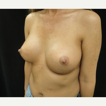 25-34 year old woman treated with Breast Augmentation after 3823119