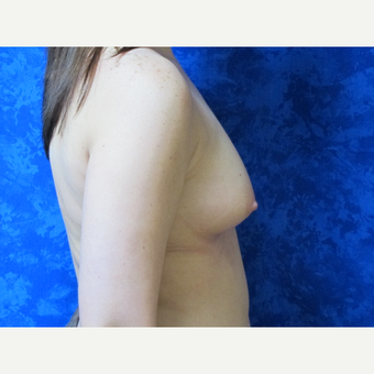 35-44 year old woman treated with Breast Implants before 3301285