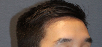 28 year old male - Forehead Reduction after 2724608