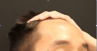 28 year old male - Forehead Reduction before 2724608