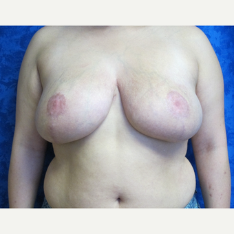 35-44 year old woman treated with Breast Reduction after 3306067