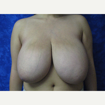 35-44 year old woman treated with Breast Reduction before 3306067