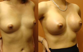 Breast Implants before 974255