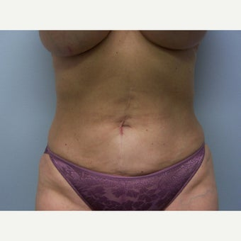 55-64 year old woman treated with Liposuction after 1566362