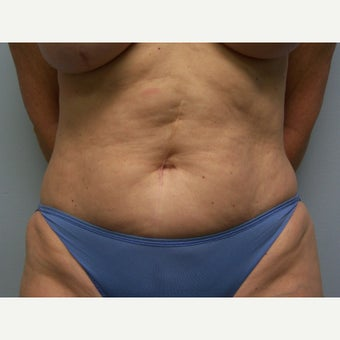 55-64 year old woman treated with Liposuction before 1566362
