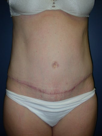 Abdominoplasty after 581652