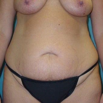 35-44 year old woman treated with Tummy Tuck before 1980358