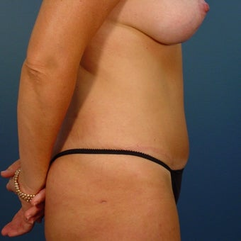 35-44 year old woman treated with Tummy Tuck 1980358