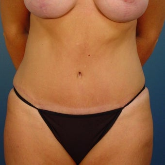 35-44 year old woman treated with Tummy Tuck after 1980358