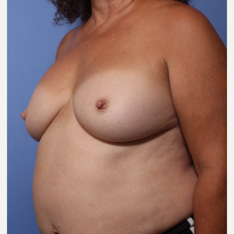 55-64 year old woman treated with Breast Implant Revision before 3782879
