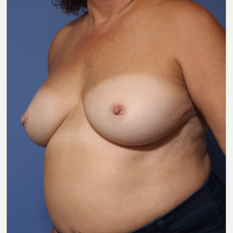 55-64 year old woman treated with Breast Implant Revision after 3782879