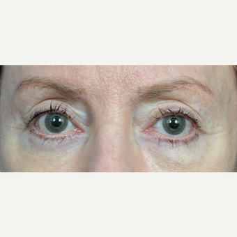 65-74 year old woman treated with Eyelid Surgery after 3440673
