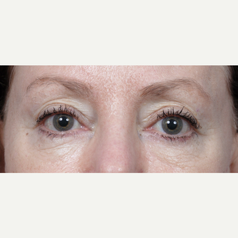 65-74 year old woman treated with Eyelid Surgery before 3440673