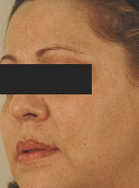 IPL Photofacial with Q-switched lasers. after 151332