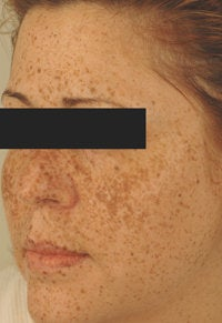 IPL Photofacial with Q-switched lasers. before 151332