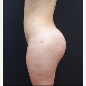 18-24 year old woman treated with Fat Transfer after 3315547
