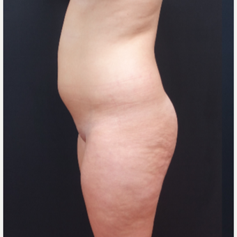 18-24 year old woman treated with Fat Transfer before 3315547