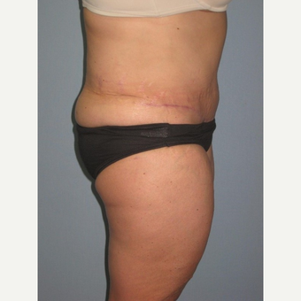 45-54 year old woman treated with Tummy Tuck