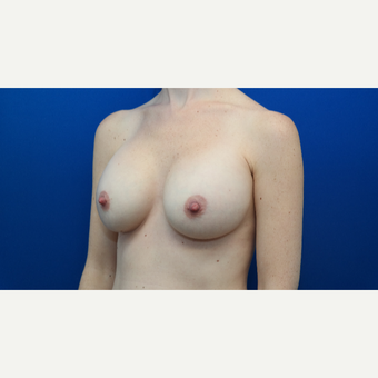 25-34 year old woman treated with Breast Augmentation after 3103880
