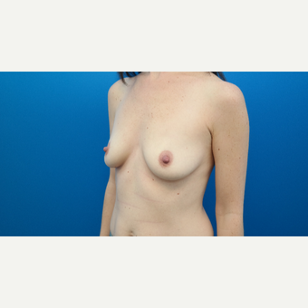 25-34 year old woman treated with Breast Augmentation before 3103880