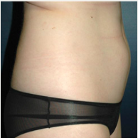 23 year old woman treated with Liposuction before 3721113