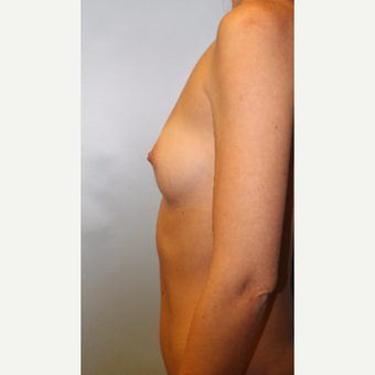 18-24 year old woman treated with Breast Augmentation before 3321776