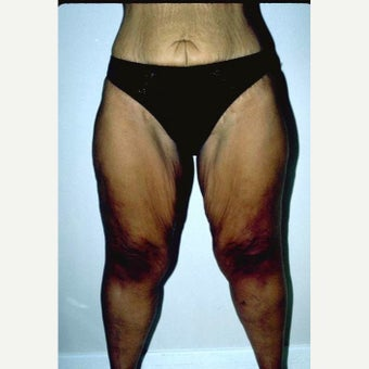 35-44 year old woman treated with Thigh Lift before 2490731