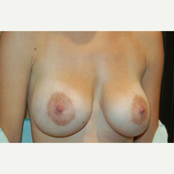 25-34 year old woman treated with Breast Implant Revision before 3798956