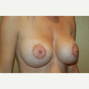 25-34 year old woman treated with Breast Implant Revision after 3798956