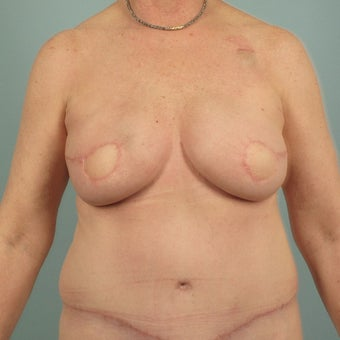 55-64 year old woman treated with Breast Reconstruction after 2533547
