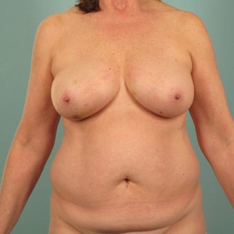 55-64 year old woman treated with Breast Reconstruction before 2533547