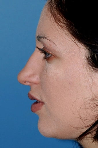 Rhinoplasty before 81102