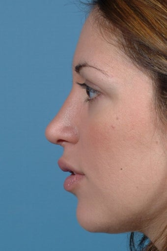 Rhinoplasty after 81102