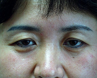 Asian patient with upper bleph