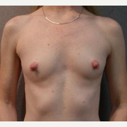 35-44 year old woman treated with Breast Implants before 3108566