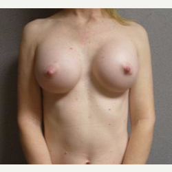 35-44 year old woman treated with Breast Implants after 3108566