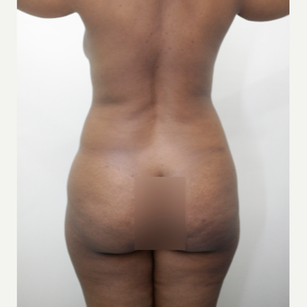 35-44 year old woman treated with Brazilian Butt Lift before 3539192