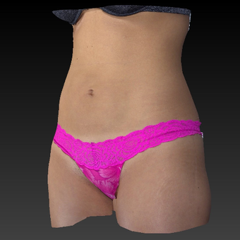 25-34 year old woman treated with Smart Lipo after 3814823