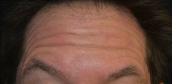 45 Year Old Male Treated for Forehead Lines before 1367245