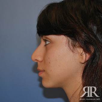 Rhinoplasty before 1315584