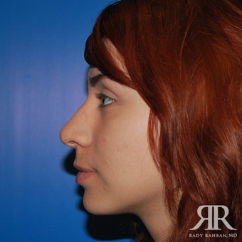 Rhinoplasty after 1315584